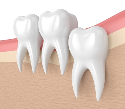 Wisdom Teeth Melbourne